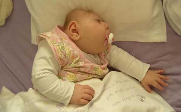 Biến chứng nghiêm trọng nhất khi mắc Zika là dị tật đầu nhỏ ở trẻ sơ sinh .